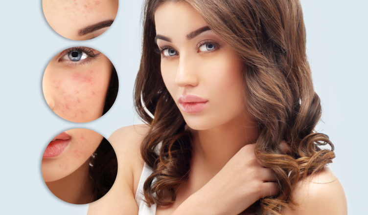 Treating Acne Scars